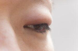 移る ものもらい プールは禁止?子供の霰粒腫(ものもらい)、目薬から手術まで治療法を紹介!